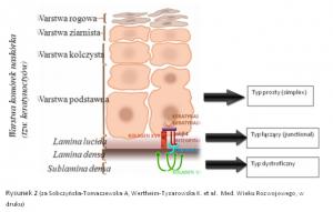 Epidermolysis bullosa - klasyfikacja