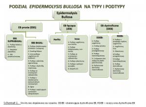Podział typów EB
